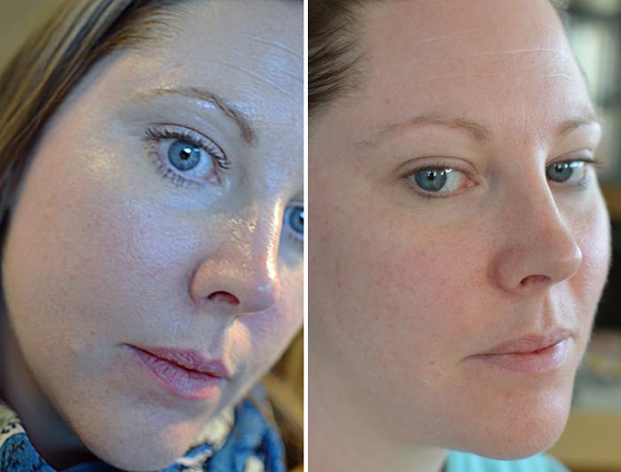 dag-0-och-dag-1-efter-ansiktsbehandling